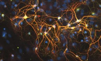 HALO® Analysis Applications in Neuroscience Research