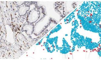 Computational pathology: A new platform to empower personalized immunotherapy