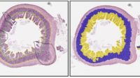 Integration of Artificial Intelligence with Digital Pathology: Deployment Considerations & Cases Studies in Pharma