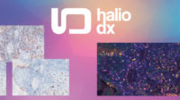 Brightplex: Combining the power of multiplexing & the ease of chromogenic IHC to assess complex immune phenotypes in the TME