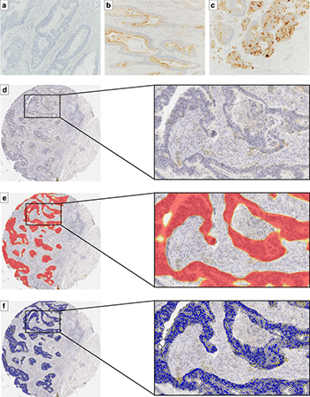 Prognostic significance of mesothelin expression in colorectal cancer disclosed by area-specific four-point tissue microarrays