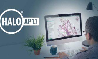 HALO AP 1.1 – Streamlining Clinical Workflows