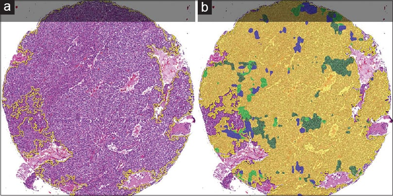 Comparing Deep Learning and Immunohistochemistry in Determining the Site of Origin for Well-Differentiated Neuroendocrine Tumors