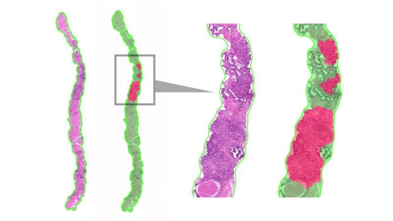Automated detection and Gleason grading of prostate cancer in digital pathology